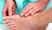Как лечить воспаление суставов?