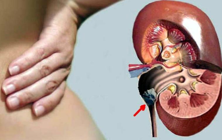 Чем опасна мочекаменная болезнь?